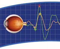 Electrophysiology Testing